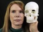Pamela Shavaun Scott posa junto con un modelo, creado con una impresora 3D, de su cráneo después de que se le extirpó un tumor cerebral atrás de uno de sus ojos, mediante una cirugía a través de los párpados.